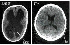 水頭症CT画像